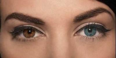 عوارض تغییر دائمی رنگ چشم
